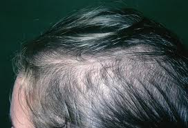 How to treat scalp conditions that trigger hair loss