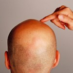 what are the top 5 hair loss treatments?