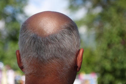 A good hair loss center in new york