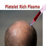 How to beat hair loss with Platelet-Rich Plasma therapy
