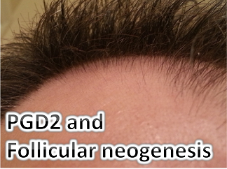 stop hair loss with pgd2 blockers