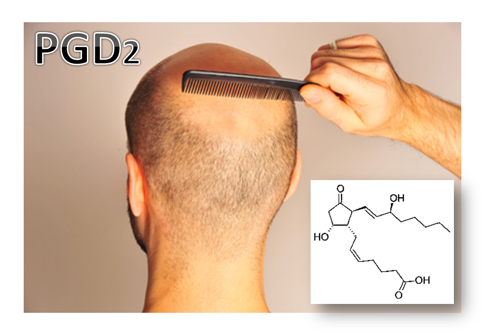 Prostaglandin D2 (PGD2), and its relation to hair loss