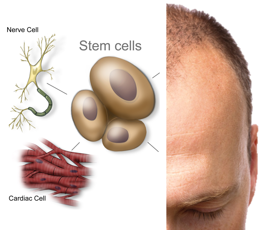 Stem Cells To Create Hair Regrowth