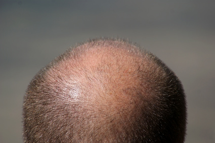 What are the available treatments for hair loss?