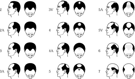 A Cure For The Age Old Problem Of hair loss