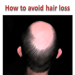 How to avoid male hair loss (MPB)