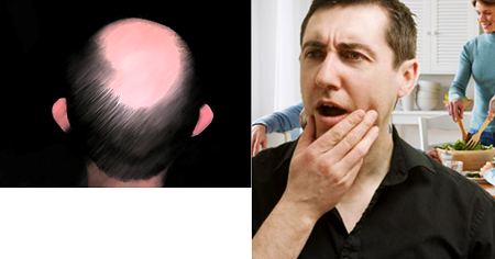 how to avoid baldness