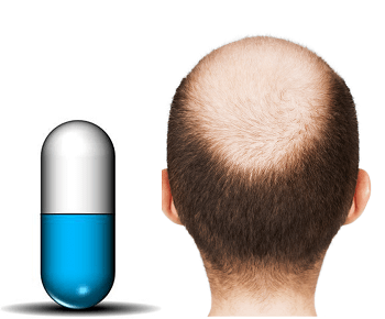 how to stop hair loss with the new anti-baldness pill