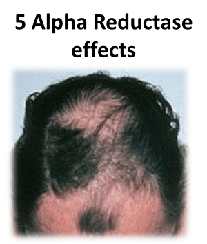 5 Alpha Reductase