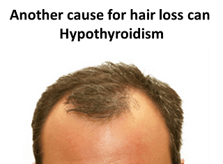 Another cause for hair loss can Hypothyroidism