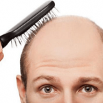 How a early diagnosis of your hair loss can make a huge difference