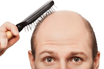 its important to make a early diagnosis of your hair loss in ordert to stop the loss