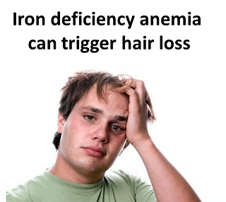Iron deficiency anemia can trigger hairloss
