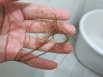 Oh my God! I am losing too much hair - Endhairloss.eu