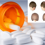 The drugs that are held responsible for hair loss