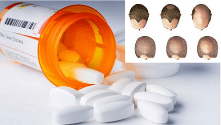 Can drugs cause hair loss? Read everything in this post