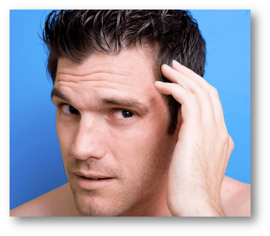 n this post I give some suggestions on how to deal with hair loss and the first signs of a reciding hair line