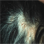 Secondary causes of hair loss