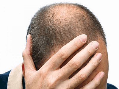 how to banish baldness with this new hair los treatment