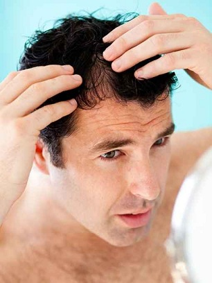 Learn in this post he different tests available for hair loss