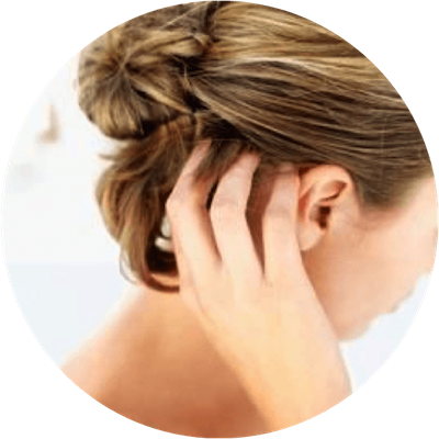 scalp conditions